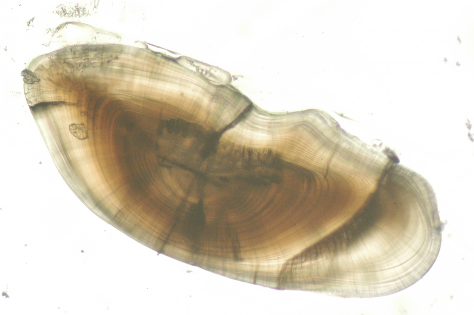 Fish earstone under magnification